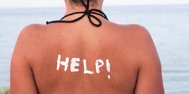 Cấp cứu cho làn da bị cháy nắng ngày hè