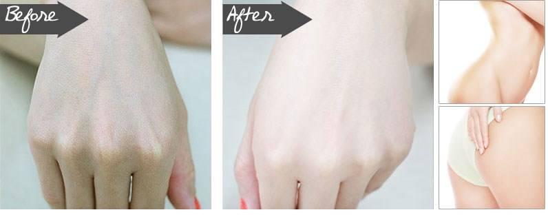 Trước và sau khi sử dụng Bộ kem siêu tắm trắng cao cấp tiêu chuẩn Spa Sakura Super White