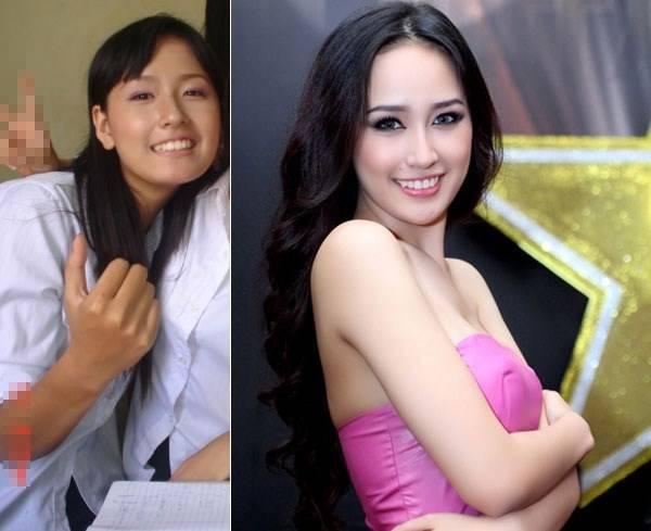 Hoa hậu Mai Phương Thúy trước và sau khi sử dụng sản phẩm