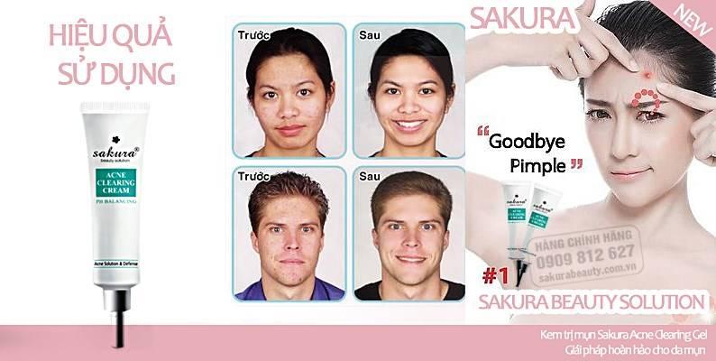 Kem đặc trị mụn Sakura với hiệu quả vượt hơn cả mong đợi