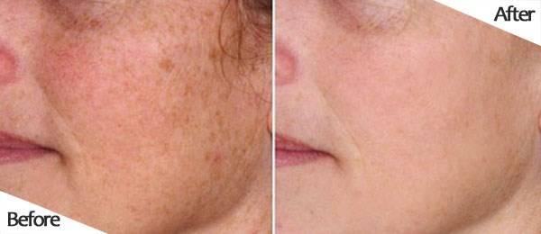 Trước và sau khi sử dụng kem trị nám Sakura Whitening Night Cream