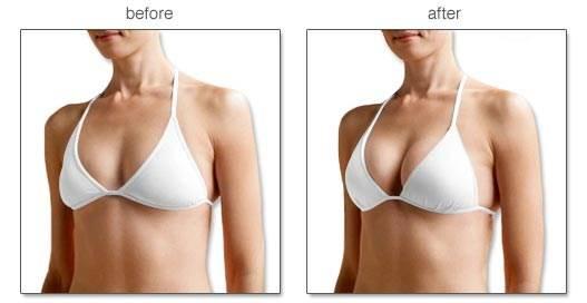 Trước và sau khi sử dụng viên uống nở ngực Pueraria Blooming