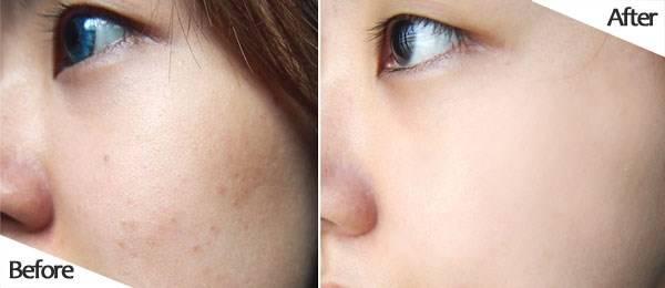 Trước và sau khi sử dụng bộ kem dưỡng trắng, trị nám Sakura